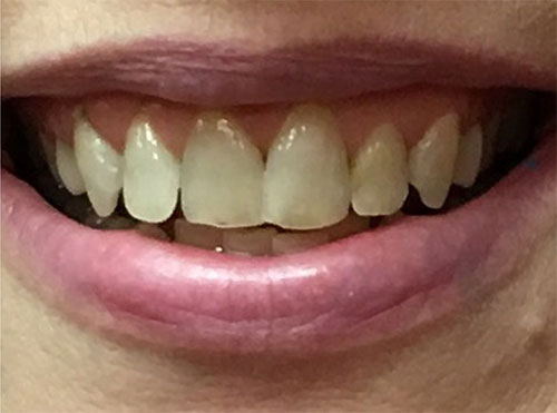 Porcelain Crowns Hendersonville TN